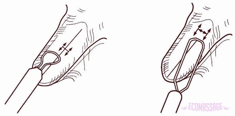 Логопедический массаж языка при дизартрии 23-3